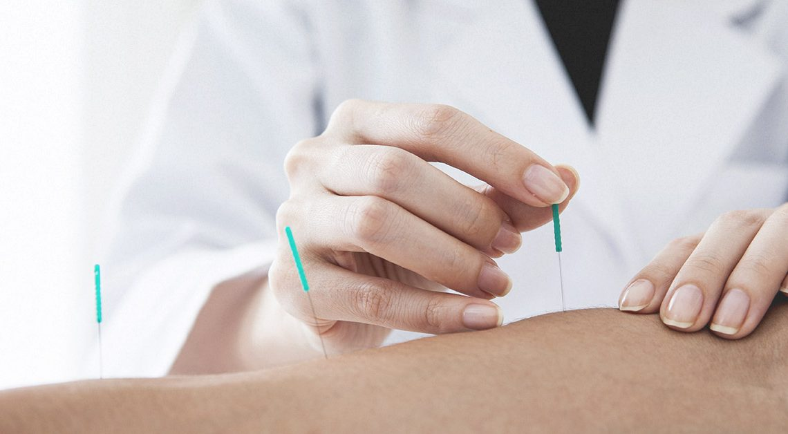 Tips to choose acupuncture clinic